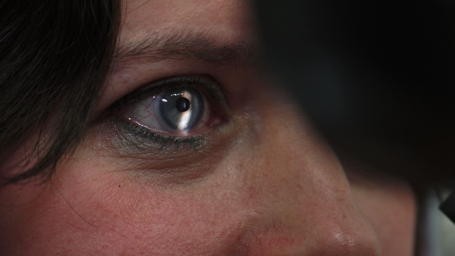 Wachtlijst oogarts